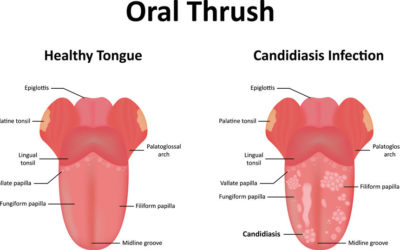 Can Oral Thrush Be Treated Over-the-Counter?