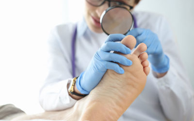 Treatments for Onychomycosis (Nail Fungus)